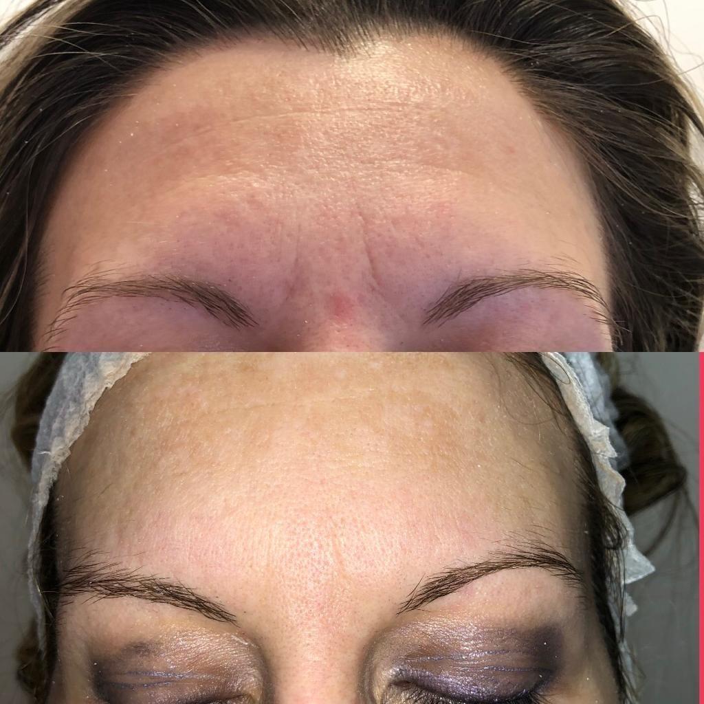 nova-estetica-specialistica-trattamento-viso-ciglia-microblading