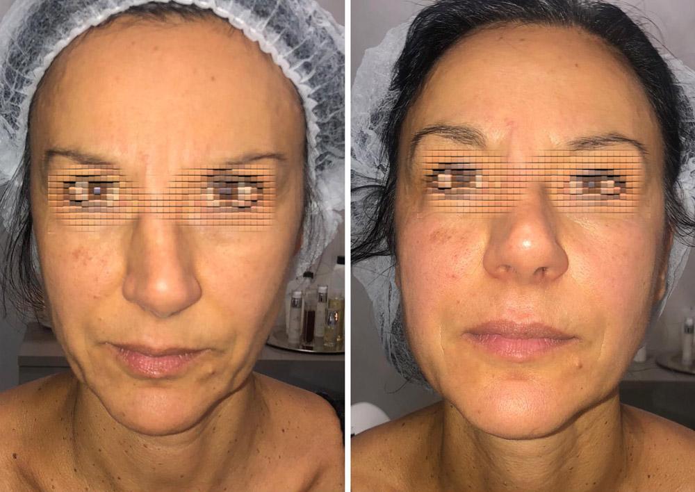 prima-e-dopo-trattamento-viso-nova-estetica-specialistica-piemonte