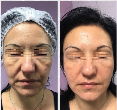 prima_dopo_viso-trattamento-nova-estetica