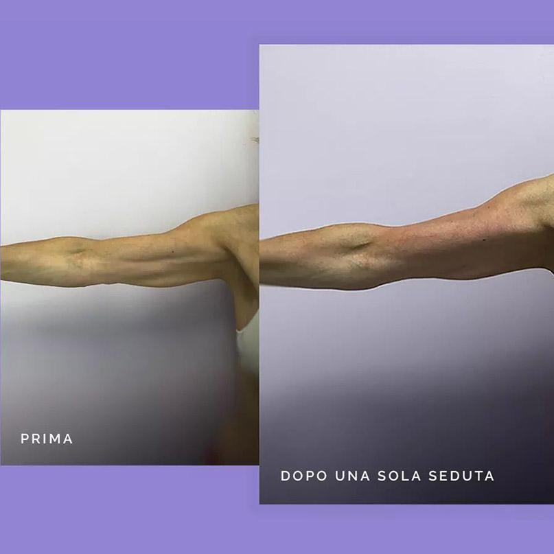radiofrequenza-trattamento-corpo-prima-e-dopo-nova-estetica-specialistica