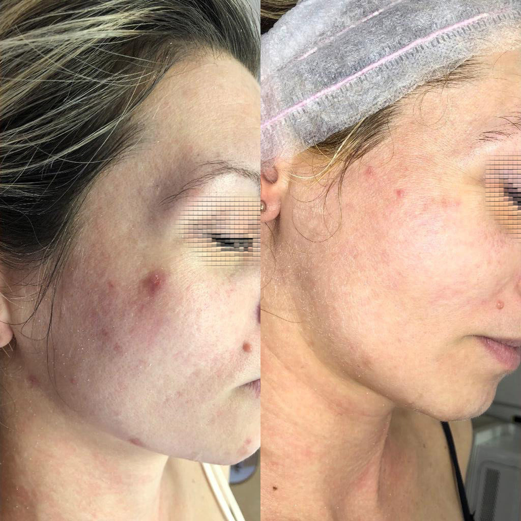 trattamenti-viso-acne-nova-estetica-specialistica