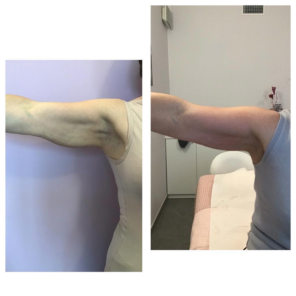 trattamento-corpo-nova-estetica-prima-dopo