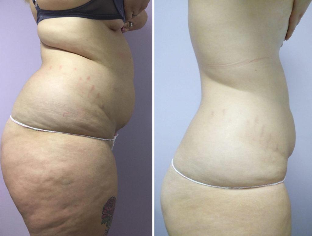 trattamento-corpo-prima-e-dopo-estetica-avanzata-nova