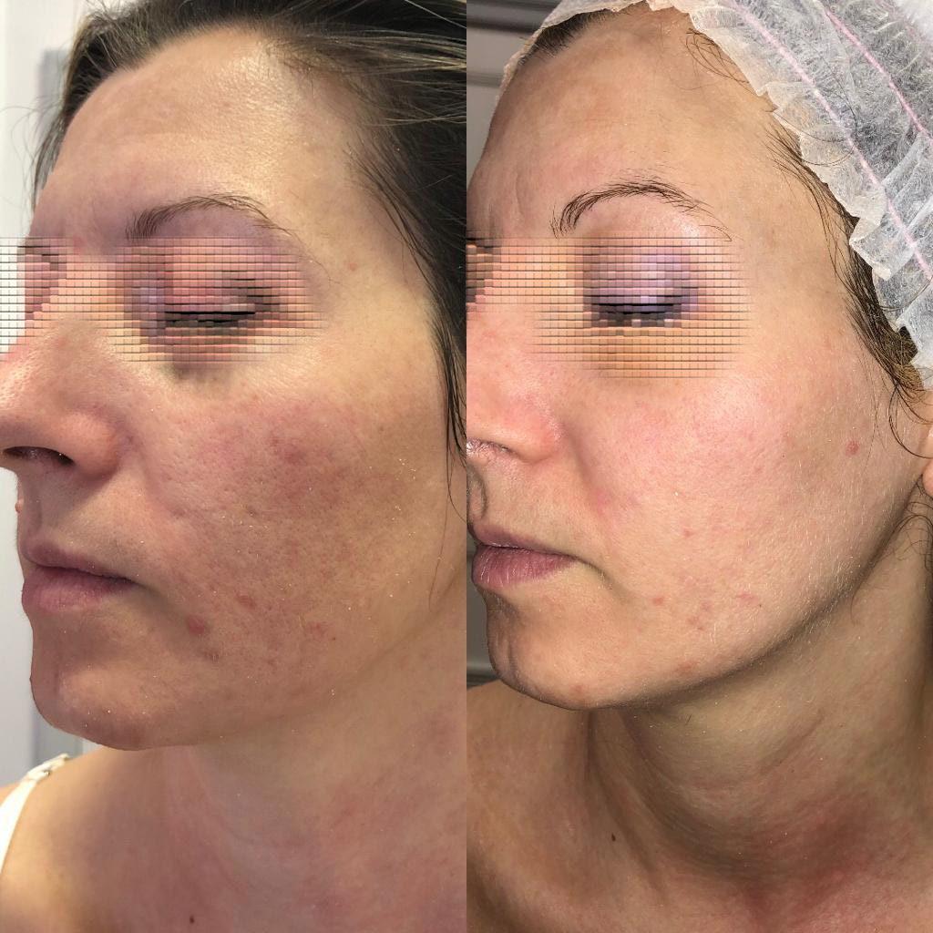 trattamento-viso-nova-estetica-prima-e-dopo