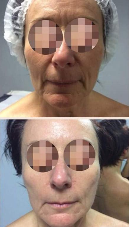 trattamento-viso-onde-storz-nova-estetica-specialistica